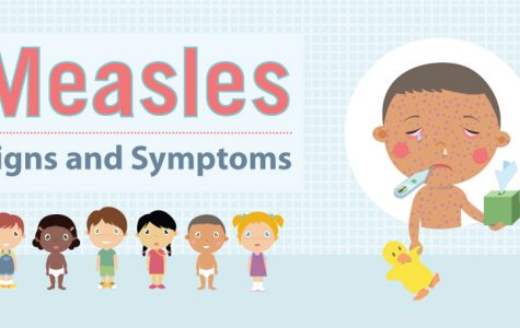 Measles cases on the rise in Orange County